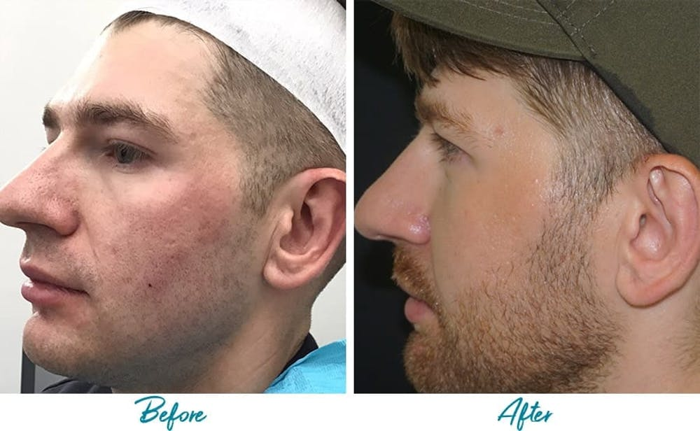 Acne Scars Gallery - Patient 18616526 - Image 2