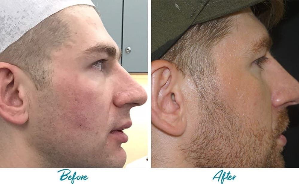 Acne Scars Gallery - Patient 18616526 - Image 3