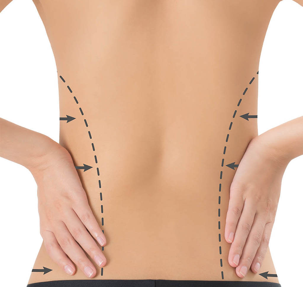 Diagram of where excess fat will be addressed with vaser liposuction on women's love handles
