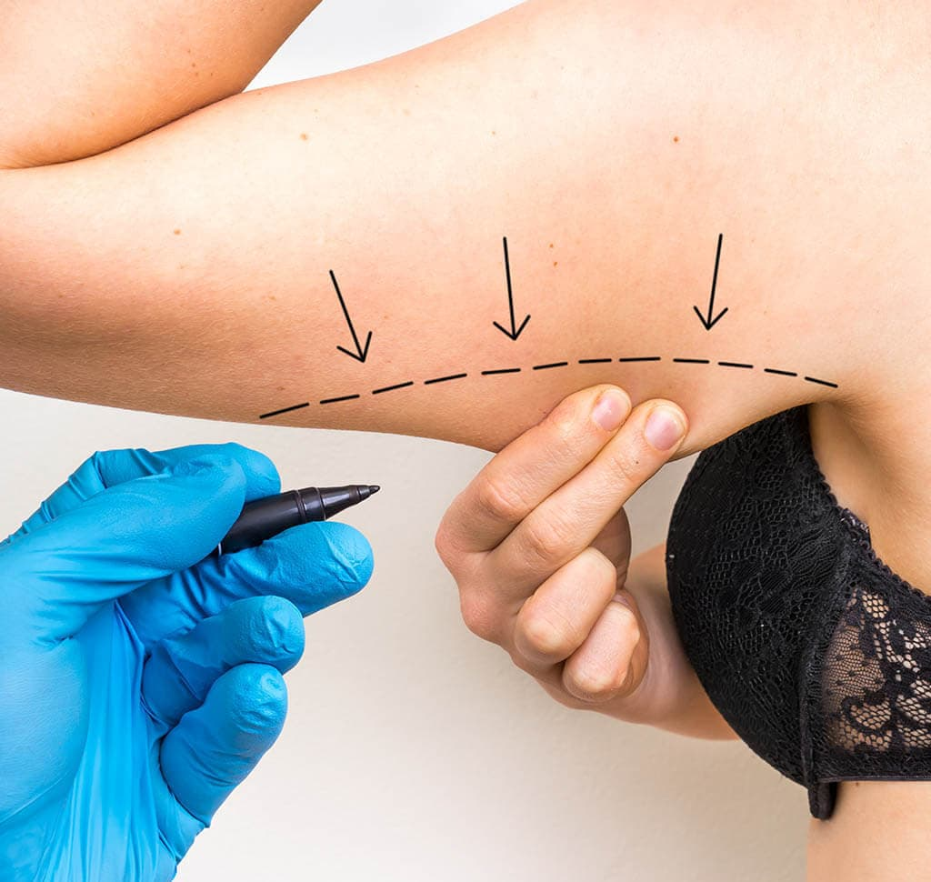 Photo of where VASER lipo can address excess fat in the upper arms