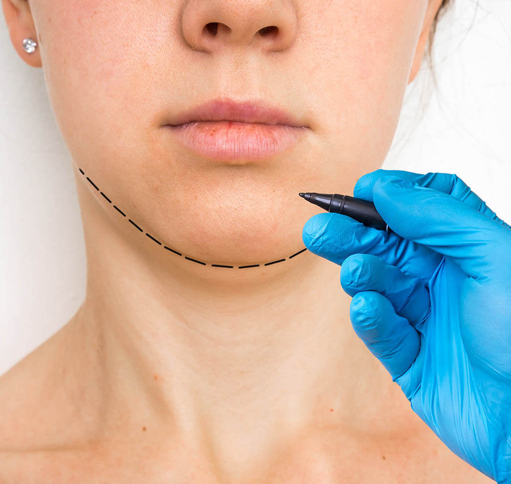 Example of where VASER lipo can address excess fat in the chin and neck area