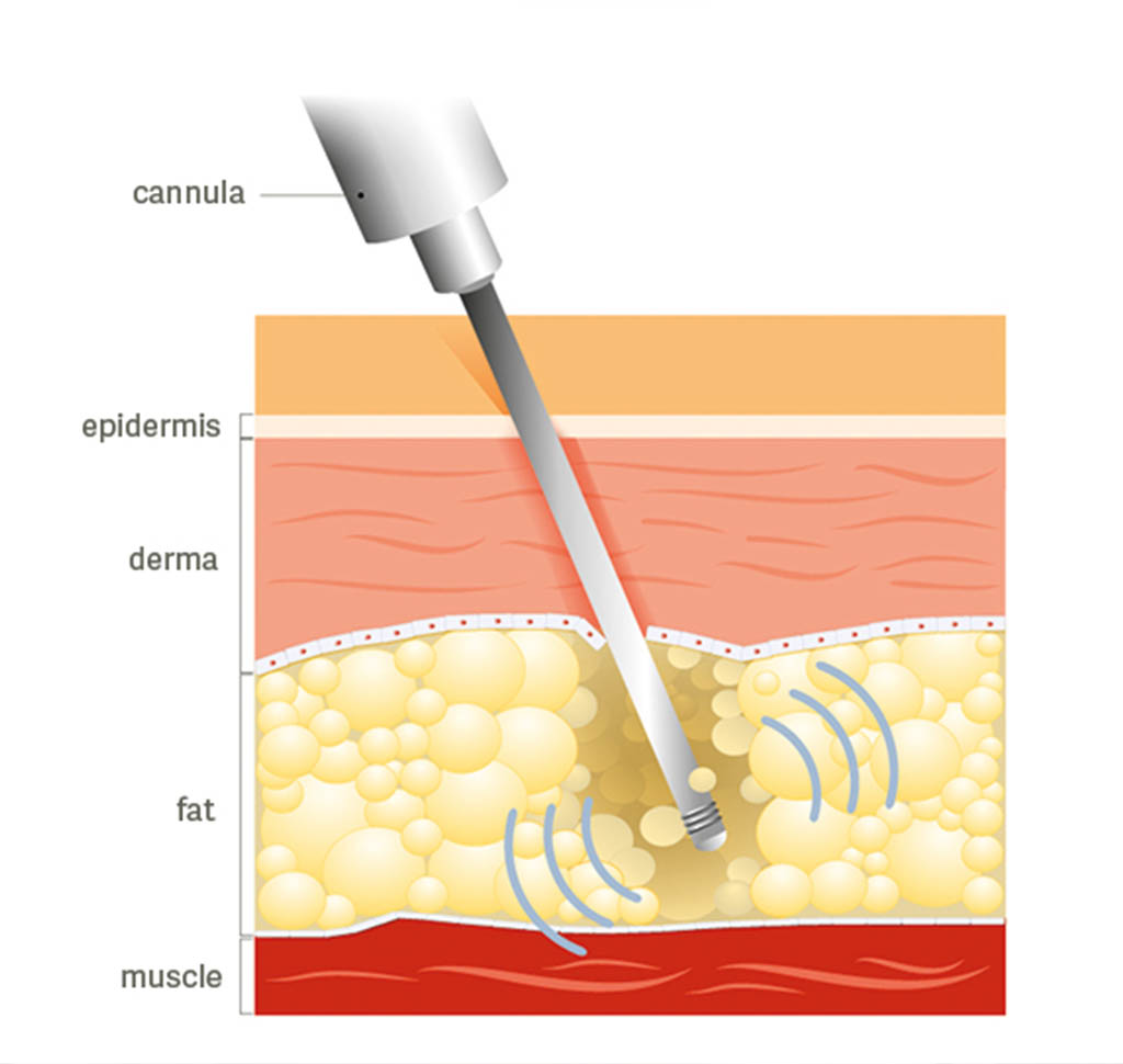 Diagram of how liposuction reaches fat