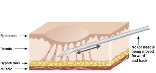 Diagram of how scar removal works