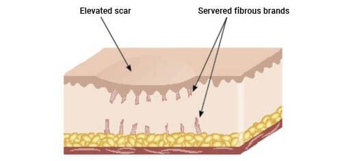 Illustration of scar reduction