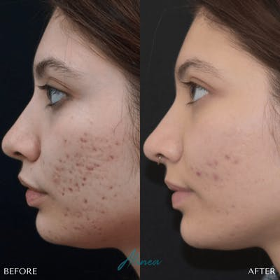 Acne Scars Gallery - Patient 20905116 - Image 1