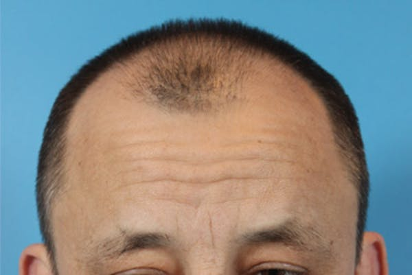 Hair Transplant Gallery - Patient 19340195 - Image 1
