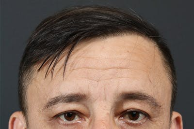 Hair Transplant Gallery - Patient 19340195 - Image 2