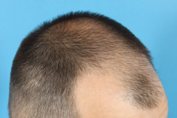Hair Transplant Gallery - Patient 19340195 - Image 3