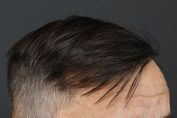 Hair Transplant Gallery - Patient 19340195 - Image 4