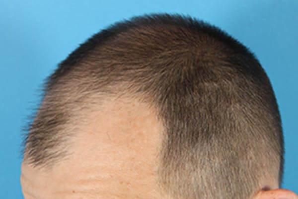 Hair Transplant Gallery - Patient 19340195 - Image 5