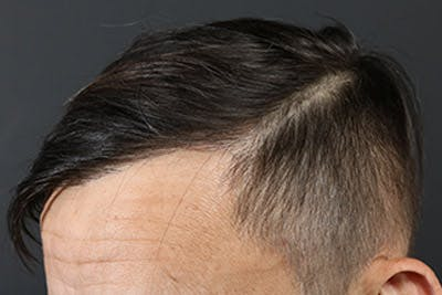Hair Transplant Gallery - Patient 19340195 - Image 6