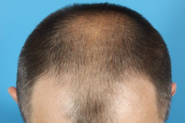 Hair Transplant Gallery - Patient 19340195 - Image 7