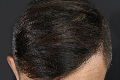 Hair Transplant Gallery - Patient 19340195 - Image 8