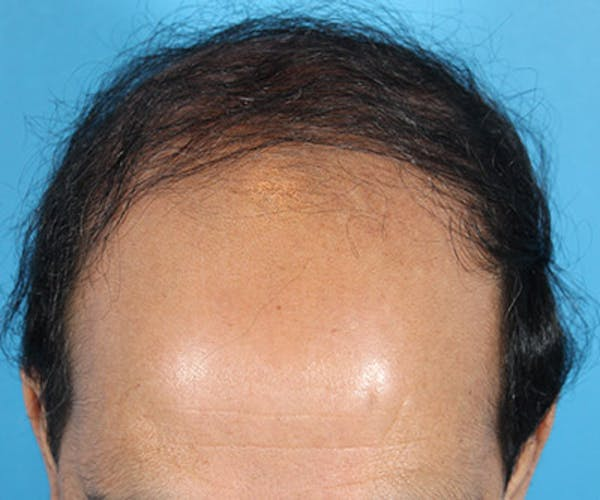 Hair Transplant Gallery - Patient 19340197 - Image 1