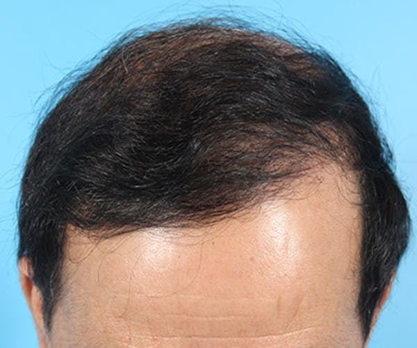 Hair Transplant Gallery - Patient 19340197 - Image 2