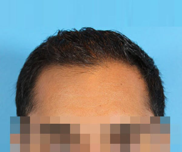 Hair Transplant Gallery - Patient 19340198 - Image 1