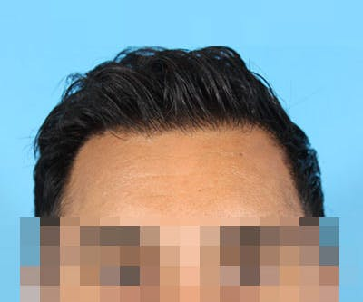 Hair Transplant Gallery - Patient 19340198 - Image 2