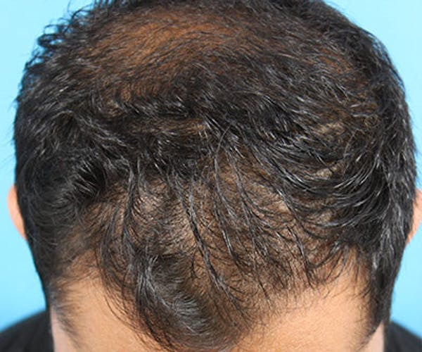 Hair Transplant Gallery - Patient 19340198 - Image 3