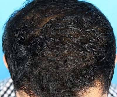 Hair Transplant Gallery - Patient 19340198 - Image 4