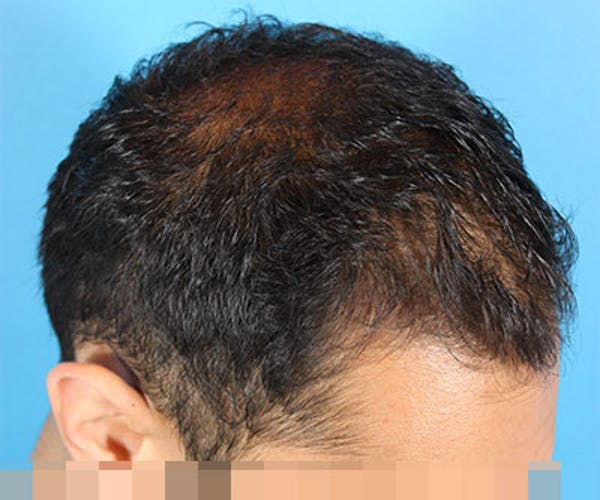 Hair Transplant Gallery - Patient 19340198 - Image 5