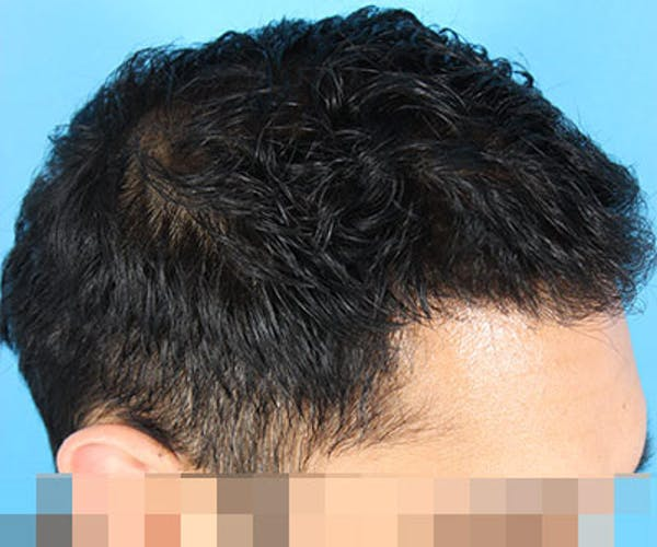 Hair Transplant Gallery - Patient 19340198 - Image 6