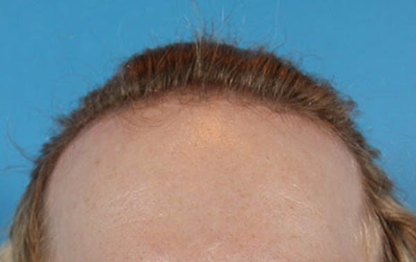 Hair Transplant Gallery - Patient 19340200 - Image 1
