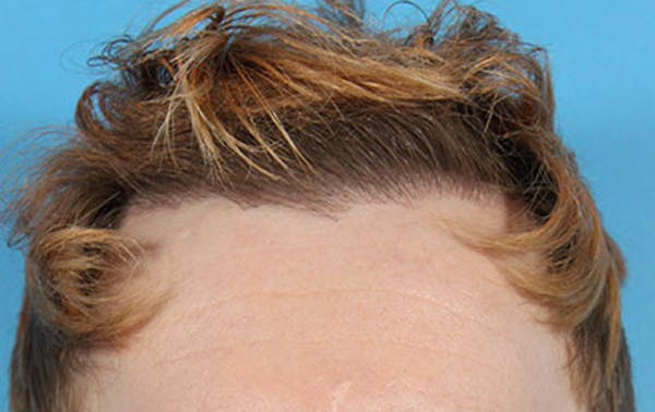 Hair Transplant Gallery - Patient 19340200 - Image 2