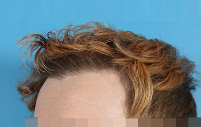 Hair Transplant Gallery - Patient 19340200 - Image 4
