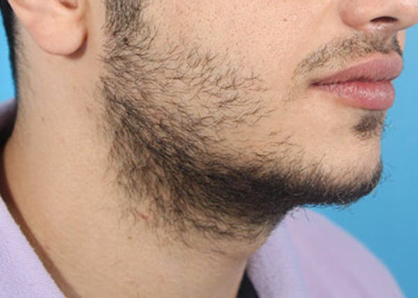Hair Transplant Gallery - Patient 19340201 - Image 3