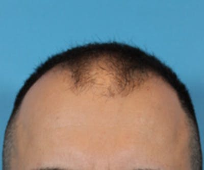 Hair Transplant Gallery - Patient 19340202 - Image 1