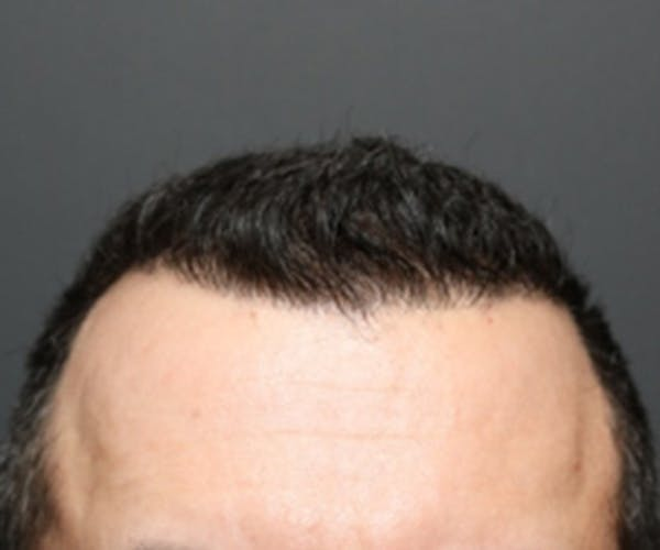 Hair Transplant Gallery - Patient 19340202 - Image 2