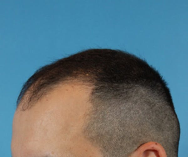 Hair Transplant Gallery - Patient 19340202 - Image 3