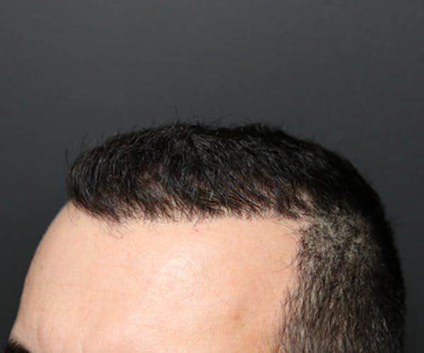 Hair Transplant Gallery - Patient 19340202 - Image 4