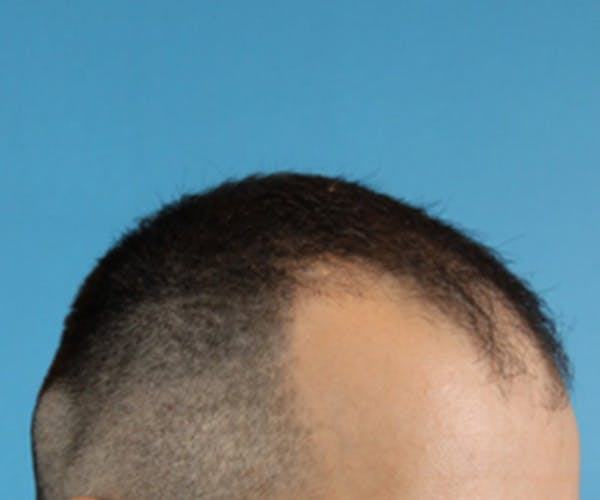 Hair Transplant Gallery - Patient 19340202 - Image 5
