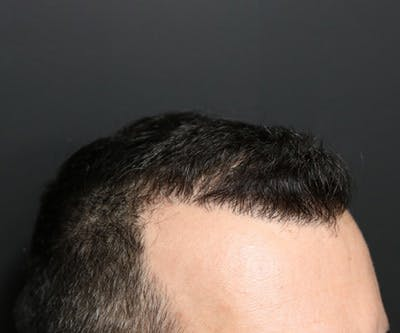 Hair Transplant Gallery - Patient 19340202 - Image 6