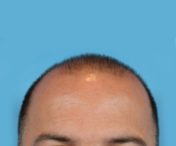 Hair Transplant Gallery - Patient 19340203 - Image 1