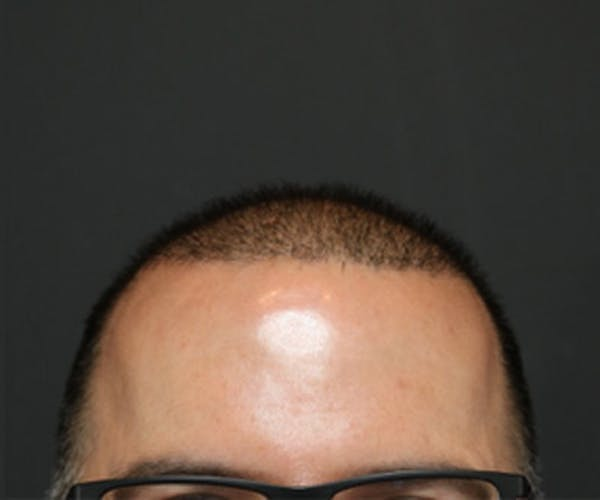 Hair Transplant Gallery - Patient 19340203 - Image 2