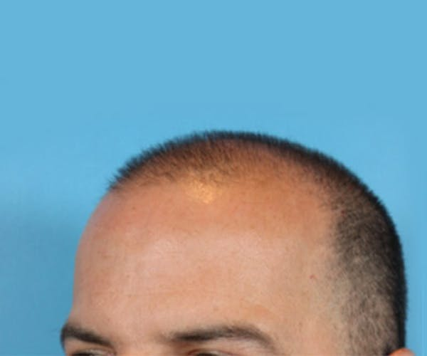 Hair Transplant Gallery - Patient 19340203 - Image 3