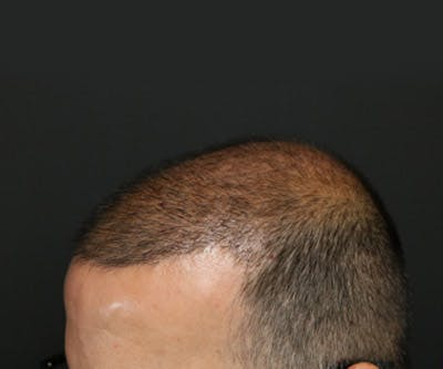 Hair Transplant Gallery - Patient 19340203 - Image 4