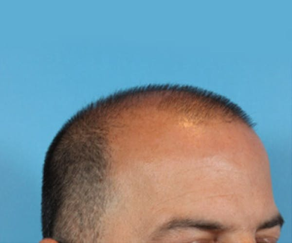 Hair Transplant Gallery - Patient 19340203 - Image 5
