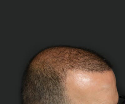 Hair Transplant Gallery - Patient 19340203 - Image 6