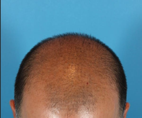 Hair Transplant Gallery - Patient 19340203 - Image 7