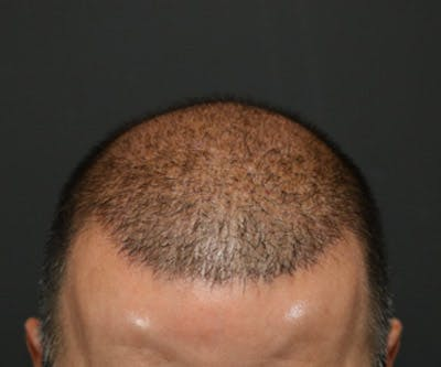 Hair Transplant Gallery - Patient 19340203 - Image 8