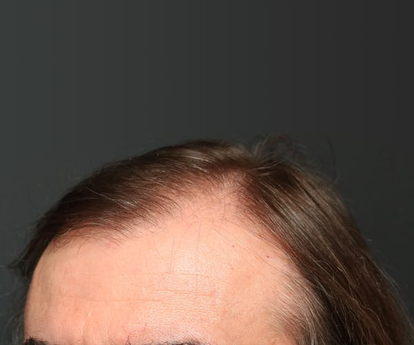 Hair Transplant Gallery - Patient 22263426 - Image 1