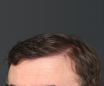 Hair Transplant Gallery - Patient 22263426 - Image 2