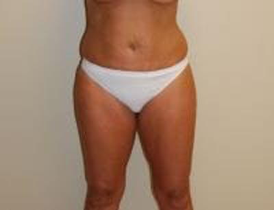 Liposuction Gallery - Patient 18618245 - Image 1