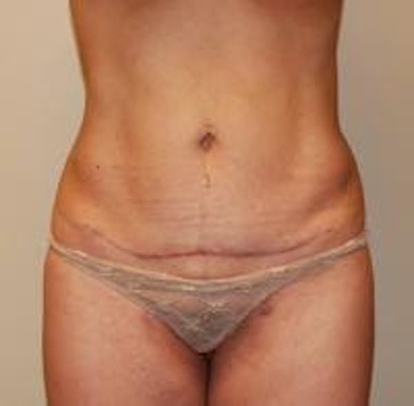 Tummy Tuck Gallery - Patient 22391067 - Image 2