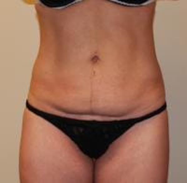 Tummy Tuck Gallery - Patient 22391067 - Image 1