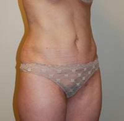 Tummy Tuck Gallery - Patient 22391067 - Image 4
