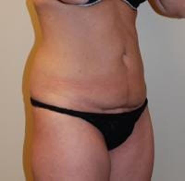Tummy Tuck Gallery - Patient 22391067 - Image 3